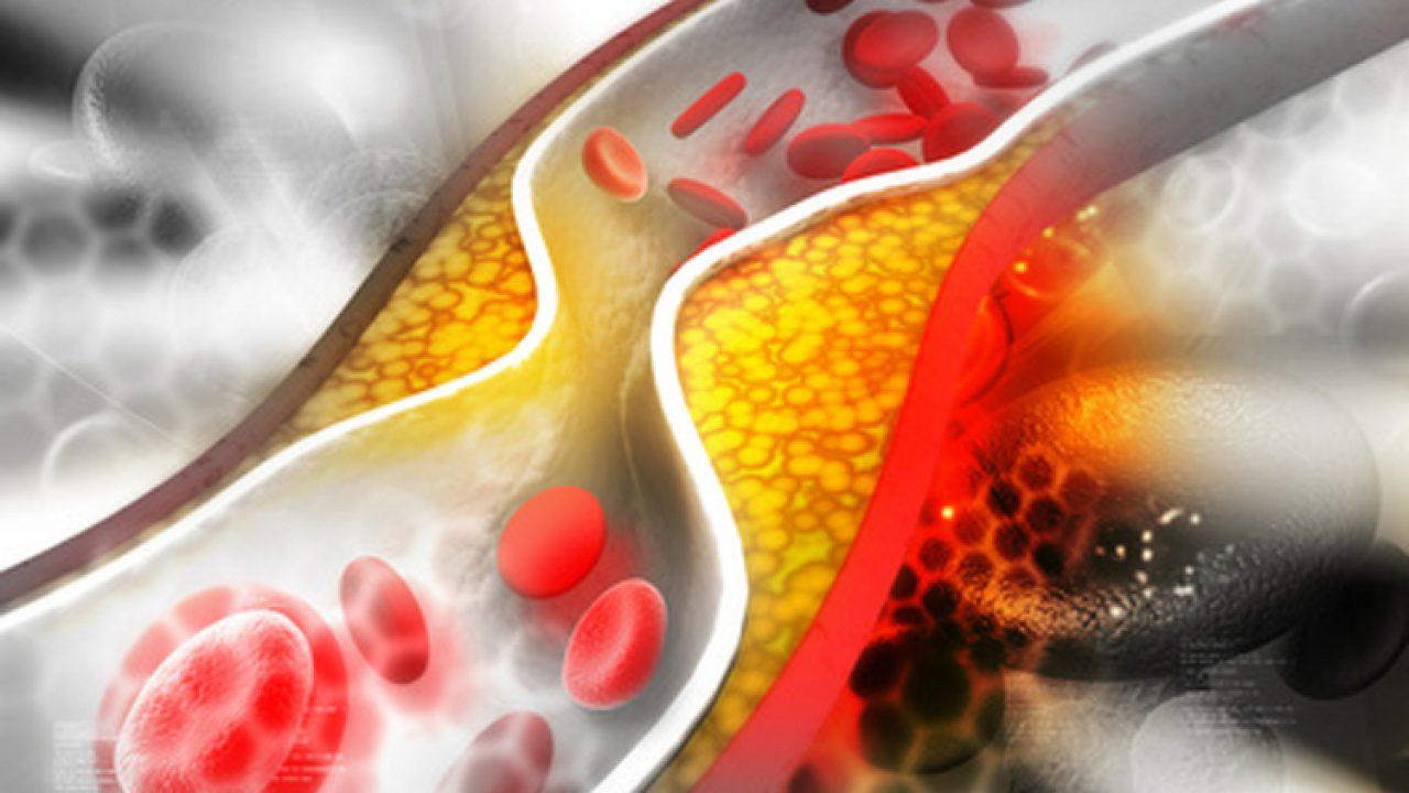colesterol hdl ahora de ingreso densidad