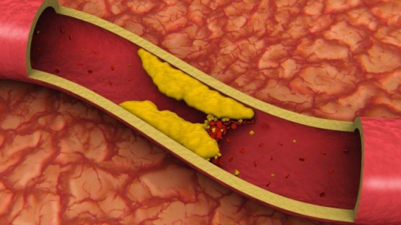 cual es lo normal del colesterol en la sangre